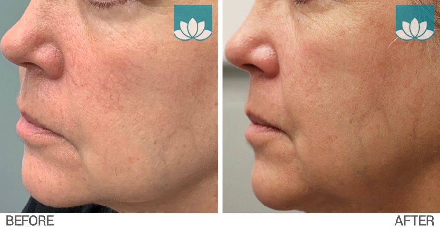 Facial telangiectasia treated with IPL before and after photo #2.