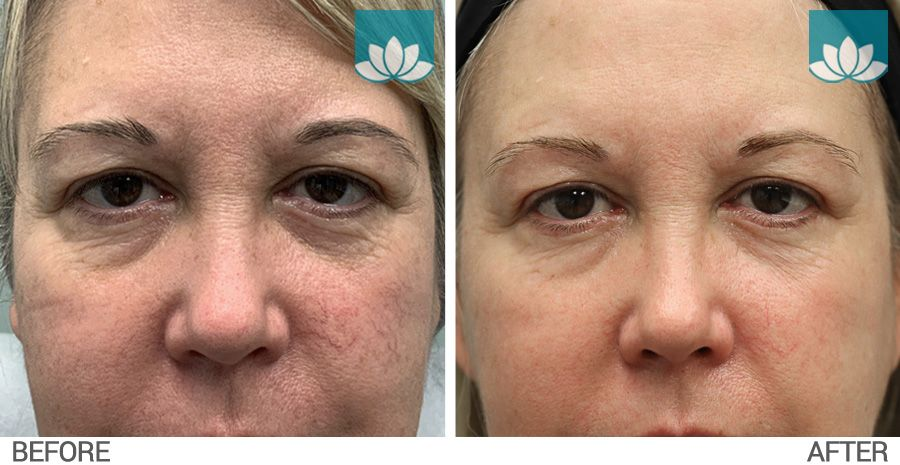 Facial telangiectasia treated with IPL before and after photo #1.