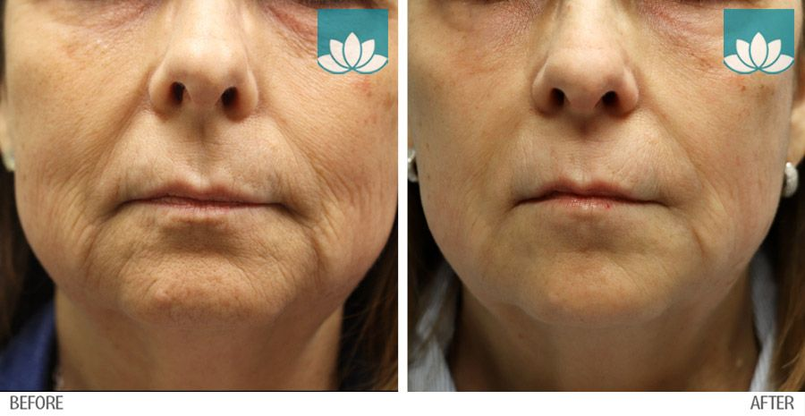Before and after photo of patient post various filler injections.