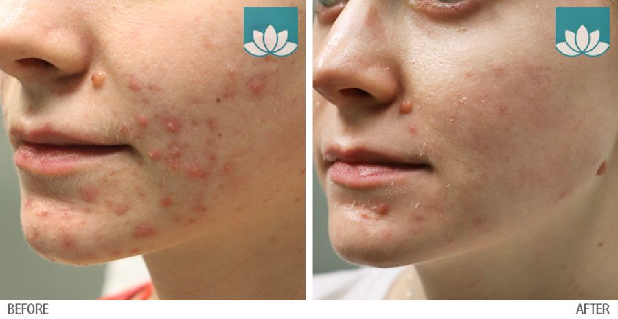 Before and after results. Topical and laser acne treatment at Sunset Dermatology.