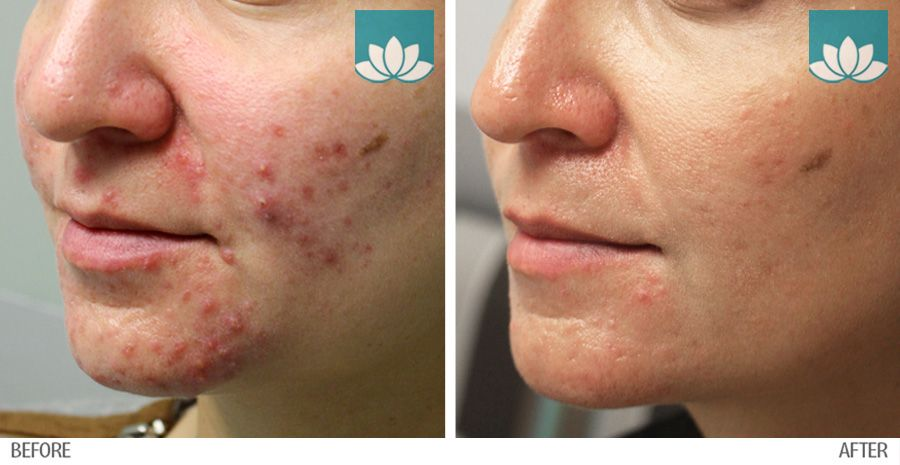 Before and after photos of patient treated for acne.