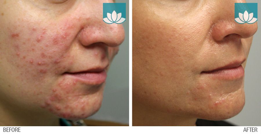 Before and after photos of patient treated for acne at Sunset Dermatology.
