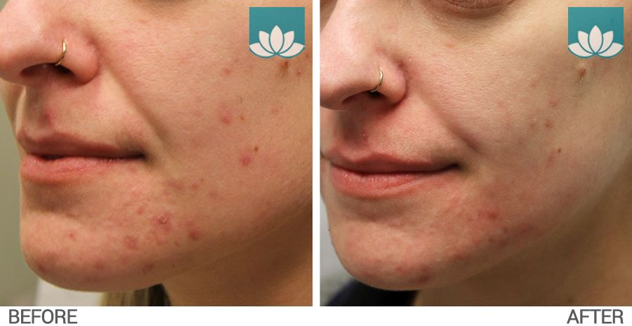 Before and after results obtained for acne treatment with topical and oral medications.