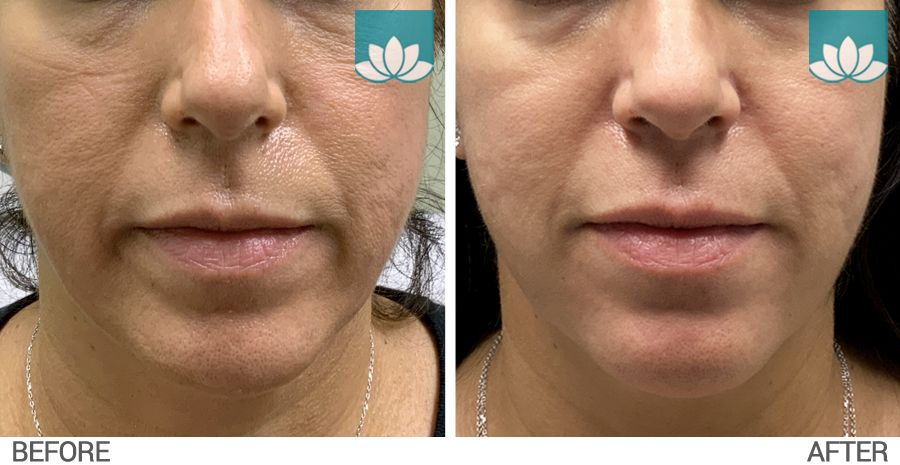 This patient had Belotero filler performed at lower face. Front view before and after image.