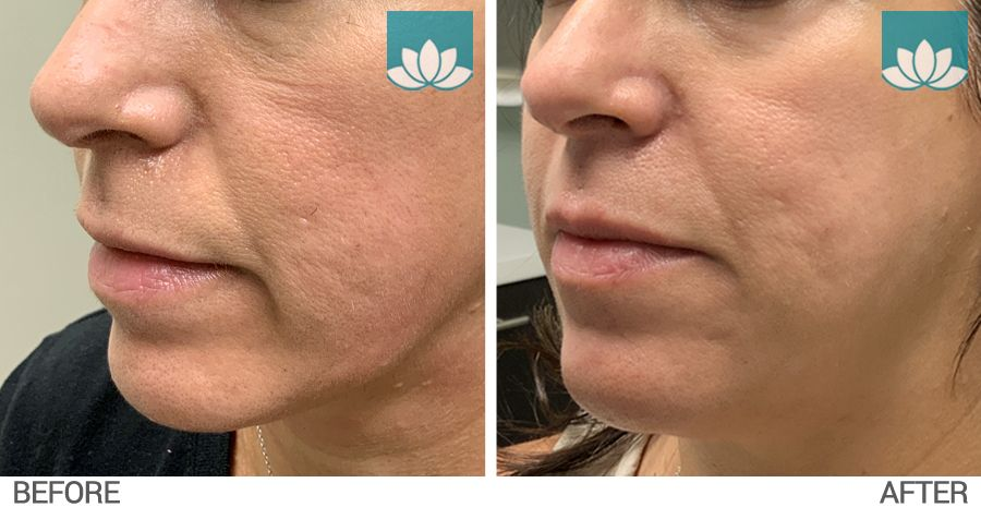 This patient had Belotero filler performed at lower face. Side view before and after image.