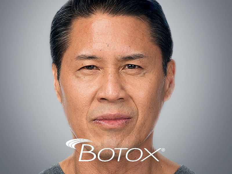 Botox discount in South Miami by Sunset Dermatology.