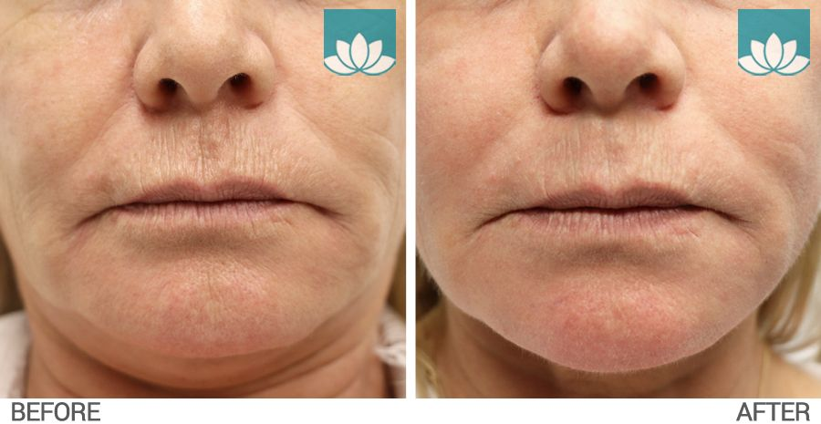 CO2RE Laser Results after 3 weeks of treatment at Sunset Dermatology.