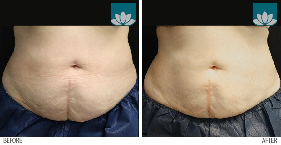 Treatment of Coolsculpting in Miami, FL, by Sunset Dermatology.