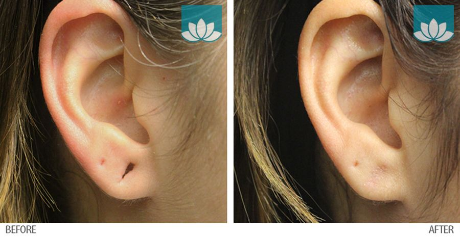 Ear repair surgery in Miami, FL, by Sunset Dermatology.