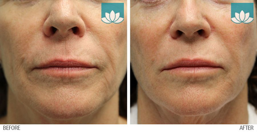 Patient treated with fillers at Sunset Dermatology.