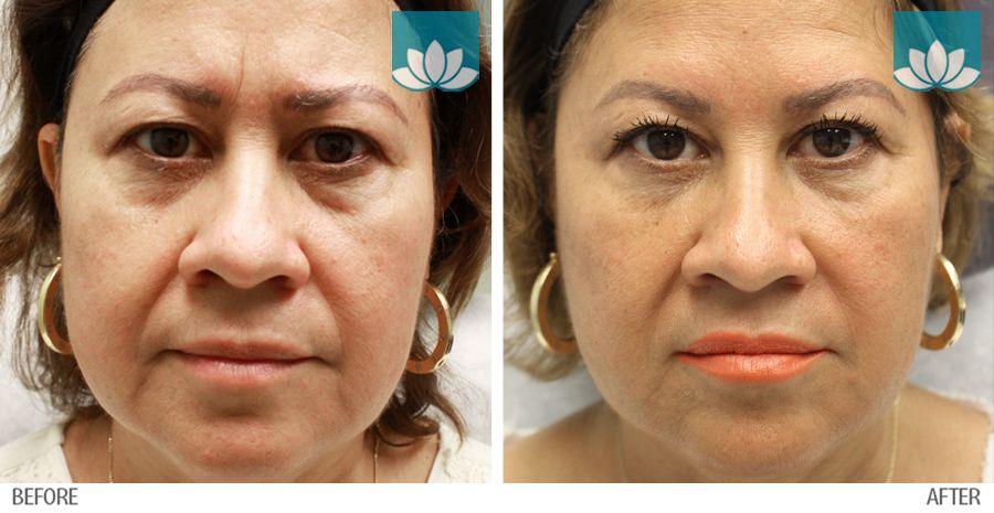Patient treated with fillers at Sunset Dermatology. Before and after photo.