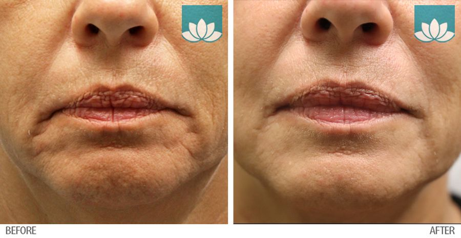 Before and After photos of Fillers treatment.