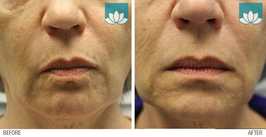 Before and After images of Fillers treatment results.