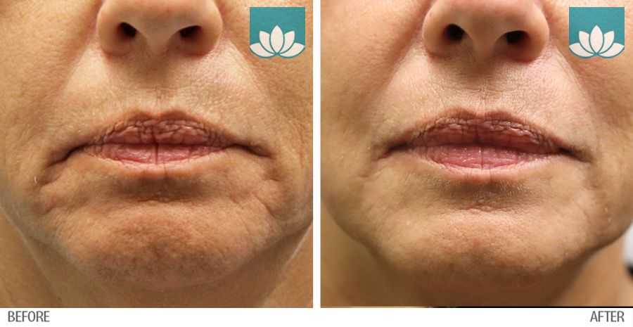Patient treated with fillers before and after photo.