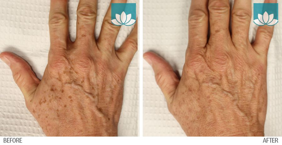 Before and After photos of patient hands treated with IPL at Sunset Dermatology.
