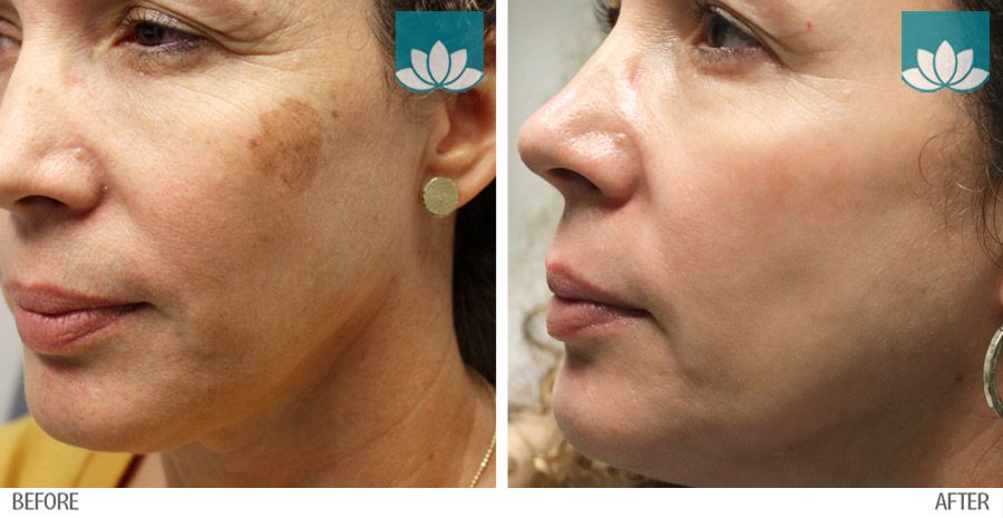 Pigmented Actinic Keratosis treated with medical procedures and medical grade products.