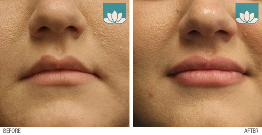 Treatment of Volbella in Miami, FL, by Sunset Dermatology.