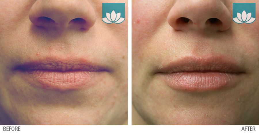 Treatment of Restylane in Miami, FL, by Sunset Dermatology.