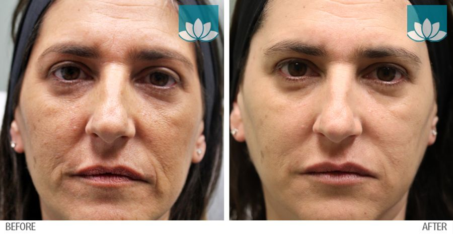 Before and after gallery of multiple procedures performed at Sunset Dermatology in South Miami.