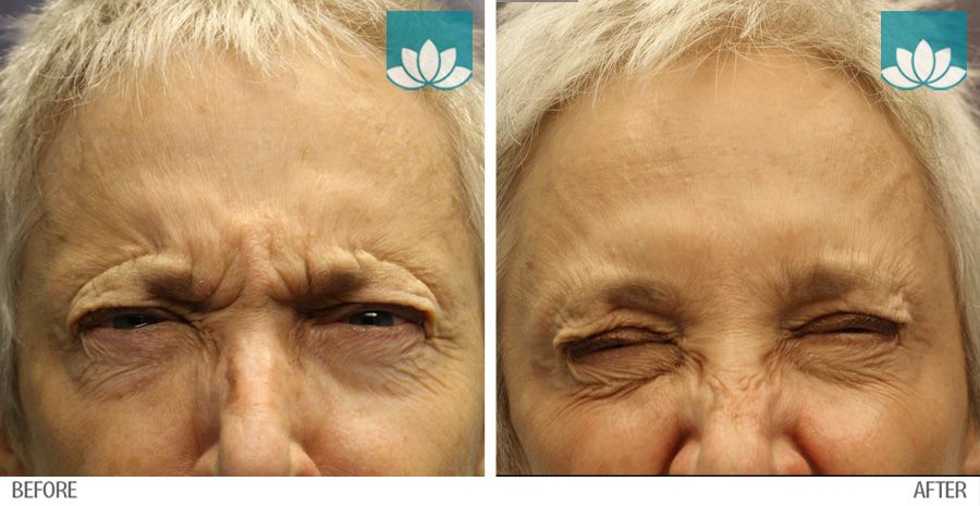 Before and after photo of patient treated with Neuromodulator at Sunset Dermatology in South Miami.