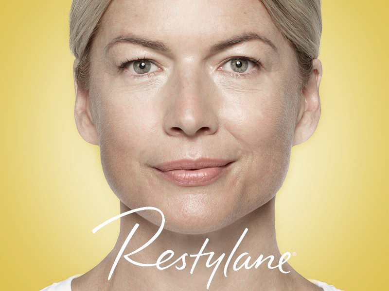 Discounted Restylane treatments in South Miami by Sunset Dermatology.