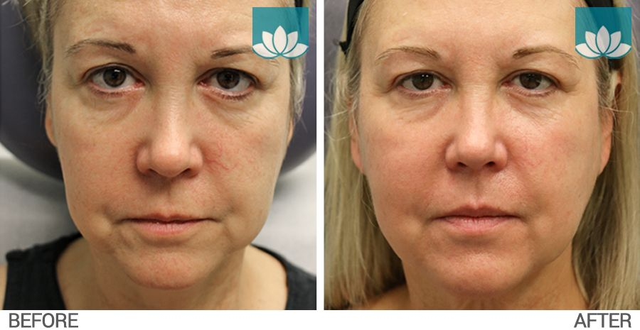Profound treatment before and after photo #1.