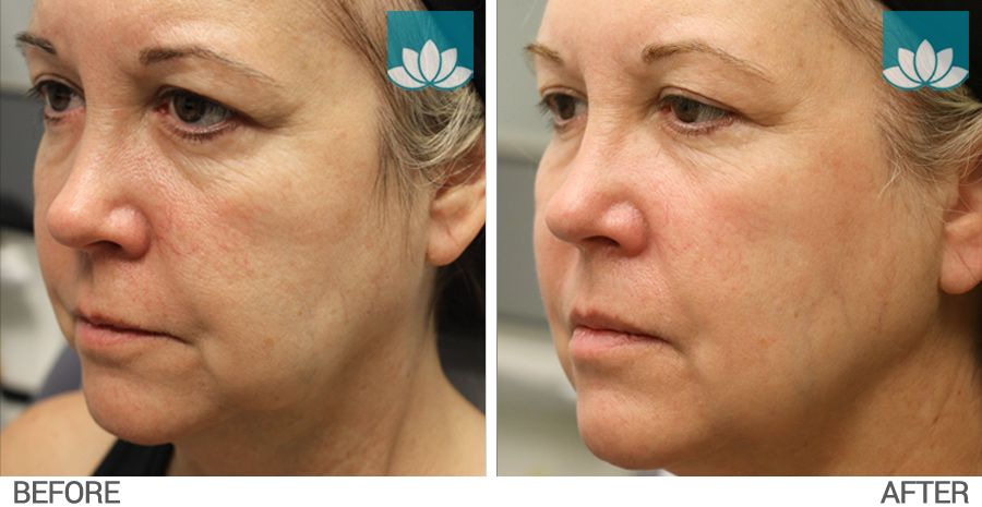Profound treatment before and after photo #2.