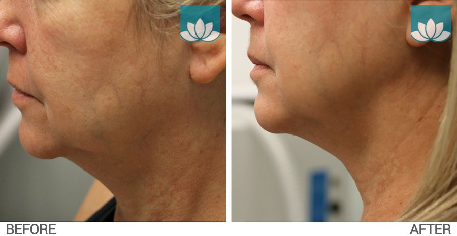 Profound treatment before and after photo #3.