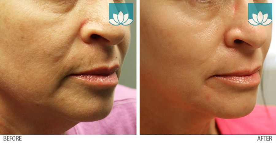 Before and after photo of  Post Various Filler Injections and Topical ZO Skin Health Regimen.