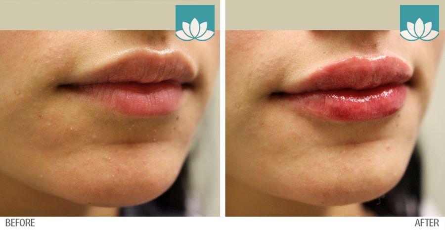 Before and after images of Volbella results at Sunset Dermatology.