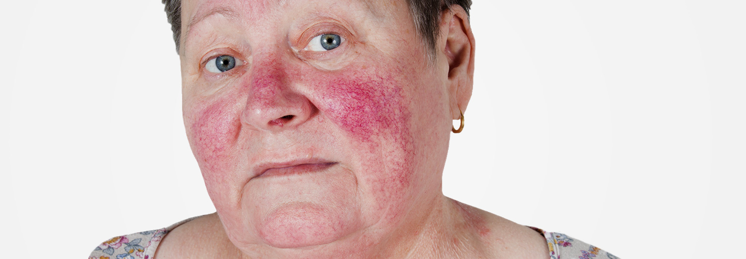 Rosacea is a common skin condition with acne-like bumps of the central face which is sometimes accompanied by facial blushing or flushing.